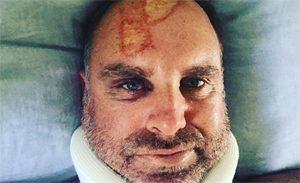 Hayden Suffers Neck Injuries